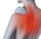 Боль в верхних отделах спины