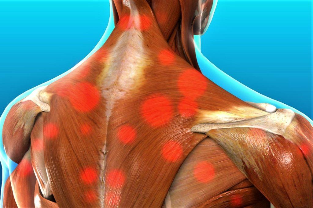 миофасциальный болевой синдром шеи